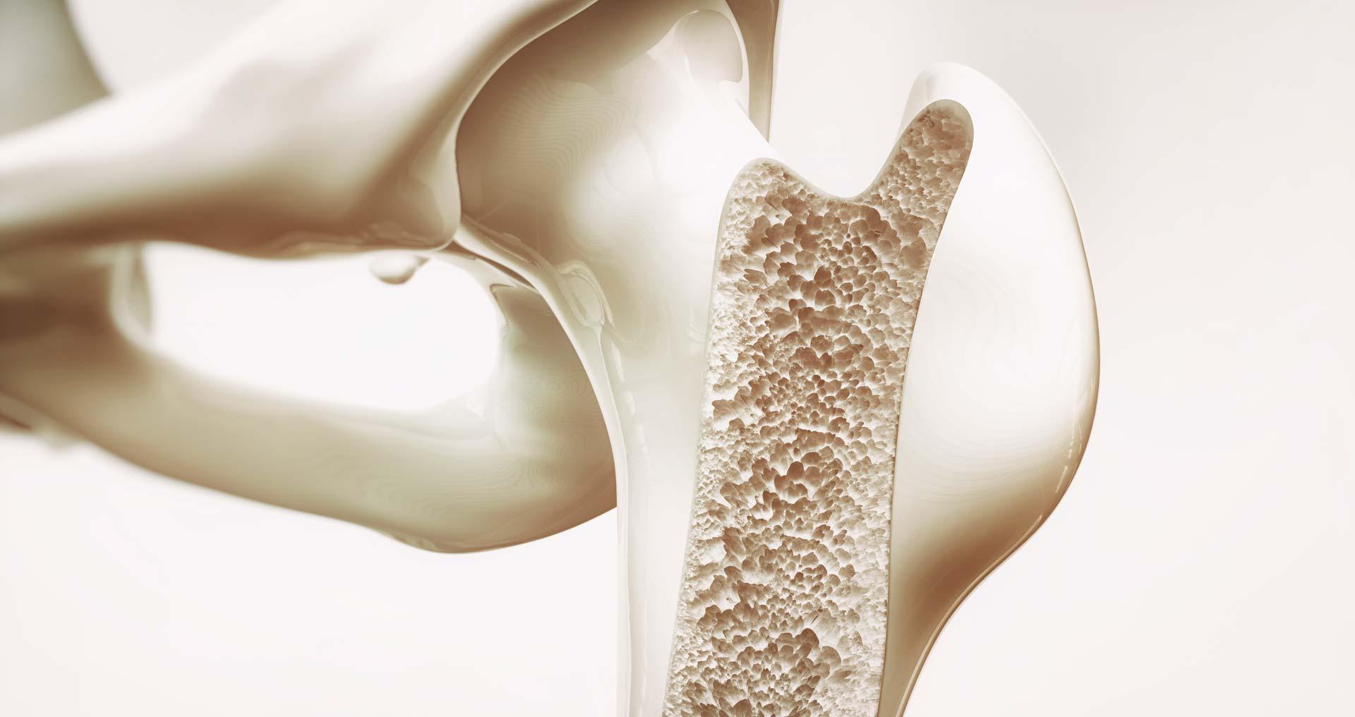 Frattura da osteoporosi